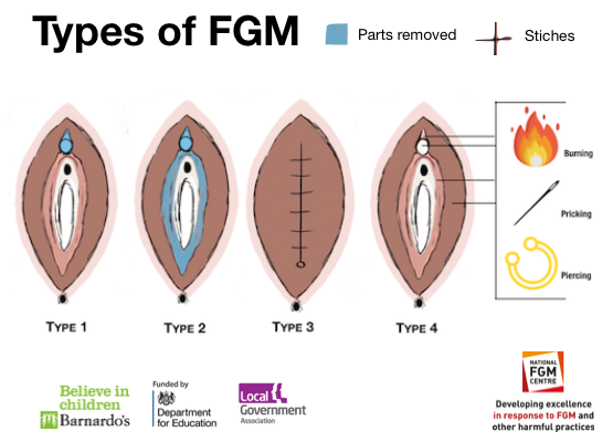 WhatisFGM-National-FGM-Centre-UK